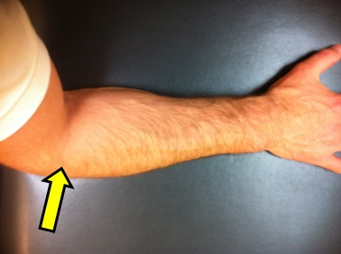 tennis elbow 1a