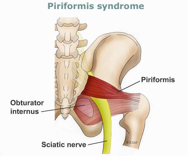 SCIATICA - Assessment and how to differentiate NERVE PAIN from muscle pain